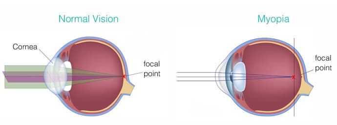 myopia-compared-with-normal-vision