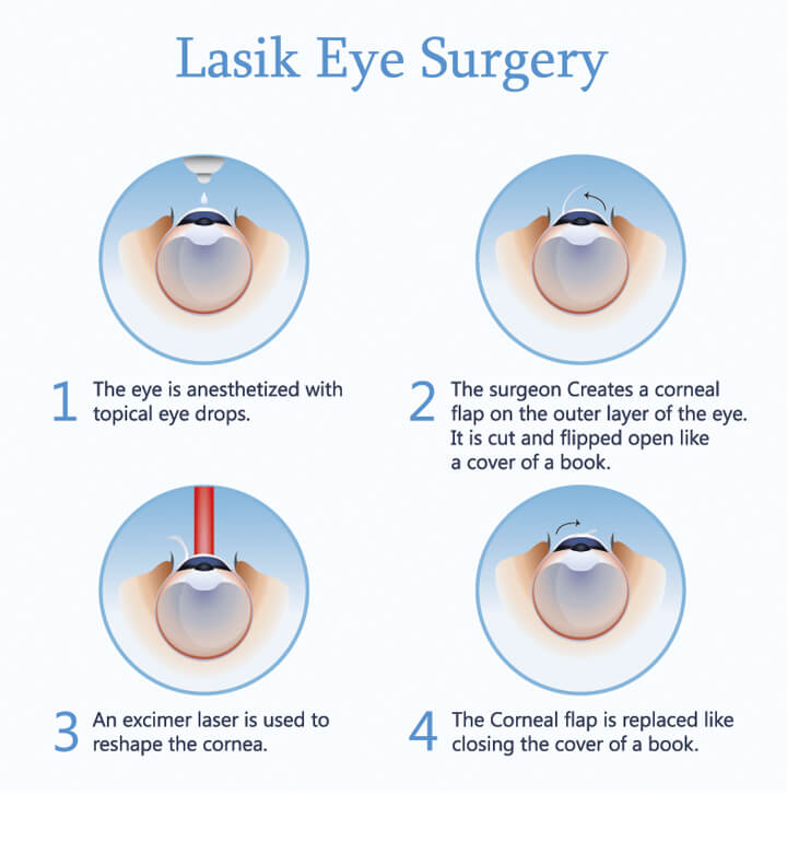 What Does Lasik Eye Surgery Feel Like ?  Optilase Laser. Heritage Assisted Living Reuters News Service. Orlando Mortgage Company Aas Criminal Justice. Network Attached Backup Education Real Estate. Mount Auburn Hospital Cambridge Mass