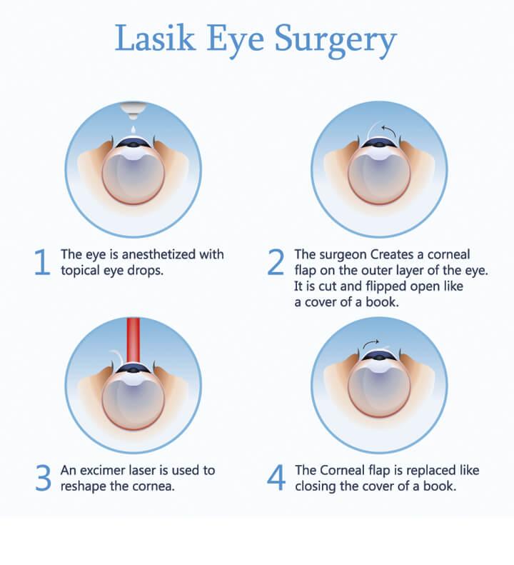 Lasik Laser Vision Correction Testimonials Denver: What Does LASIK Eye Surgery Feel Like ?